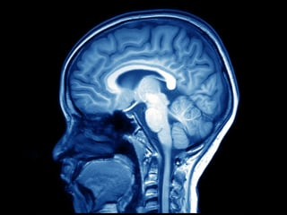 Fluid Leaking From Brain into Ear is Linked to Obesity