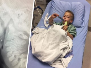 Mom warns of barbecue danger after son swallows wire brush bristle