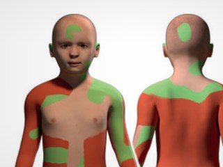 Gene Therapy Skin Grafts Save Boy With Rare Disease