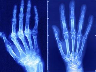 Arthritis drugs show how U.S. drug prices defy economics