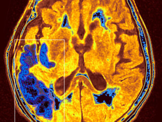 New stroke guidelines extend time frame for life-saving treatment
