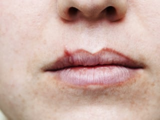 Half of Americans have cold sore virus; 12 percent genital herpes
