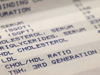 New cholesterol-lowering drug could be an alternative to statins