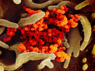 Coronavirus updates live: Countries prepare as outbreak spreads