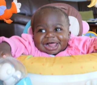 Surgeons Remove Parasitic Twin From Baby Girl