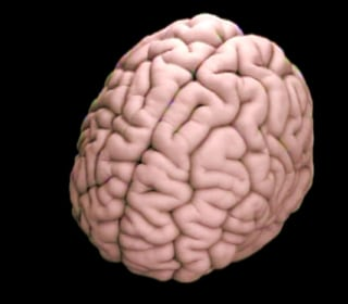 Study Finds Brain Trauma Common In NFL Players