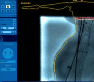 New hope for those with 'ticking time bomb' aneurysms