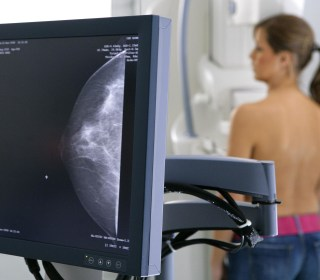 Buyer Beware: A Mammogram's Price Can Vary By Nearly $1,000, Study Finds