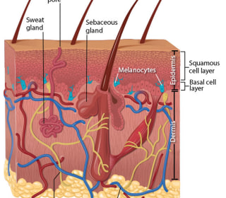 Melanoma Rates on the Rise in U.S.