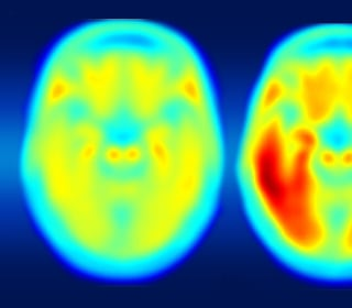 New Imaging Technique May Find Real Alzheimer's Culprit