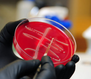 'Nightmare Bacteria' Superbug Found for First Time in U.S