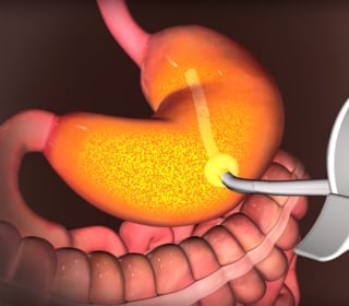 FDA Approves Weight Loss Stomach Pump AspireAssist to Combat Obesity