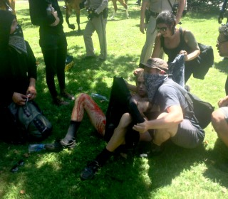 10 Injured During White Nationalist Rally in California Capital