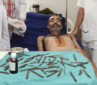 Doctors in Amritsar, India Remove 40 Knives from Policeman's Stomach