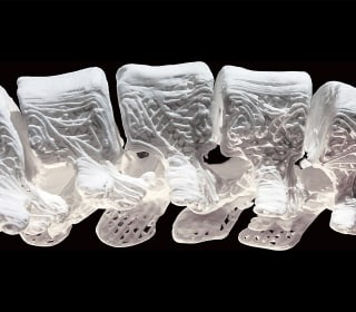 3-D Printed Bone Material Acts Like Real Bone for Custom-Made Implants