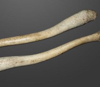 Why Don't Men Have Penis Bones?