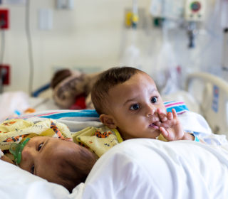 Adorable Conjoined Twin Sisters Separated After Marathon Surgery