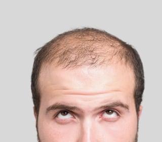 Hair Loss Drug Propecia Carries Risk of Losing Something Else
