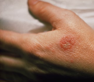 Scientists Home in on Eczema-Causing Germs
