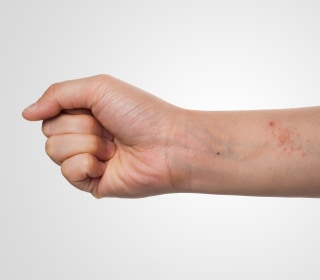 NIH Wants to Test New Bacteria Therapy for Eczema