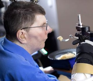 Paralyzed Man Moves His Arm Using Brain Implants