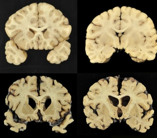 CTE Study Finds Evidence of Brain Disease in 110 Out of 111 Former NFL Players