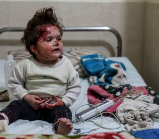 Children among the injured in besieged Damascus suburb