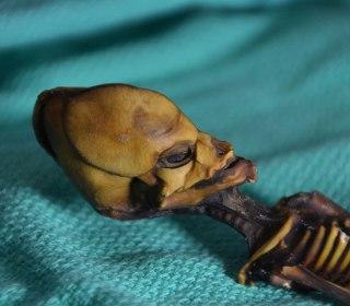 Weird little Atacama skeleton was just a diseased fetus