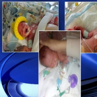 2 Conjoined Babies In Triplets Delivery