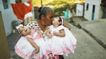 Women Not Getting Zika Follow-Up and Budget Threatens Funding, Experts Say