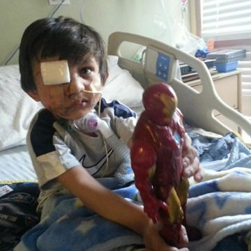 Image: Kevin Vicente was the victim of a dog mauling