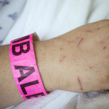 Image: Bambi Kellogg's hand is covered with scratches as she recovers from injuries sustained during a tornado