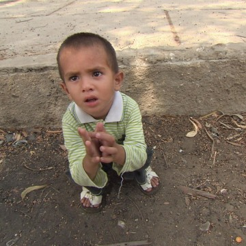 Image: A young boy with polio