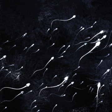 Sperm all swimming in one direction.