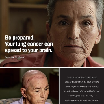 Image: Rose, 59, whose lung cancer resulted in surgery, chemotherapy and radiation, is featured in the CDC's new advertising effort to discourage smoking