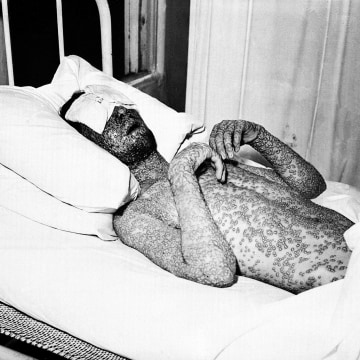Image: A man who has contracted smallpox
