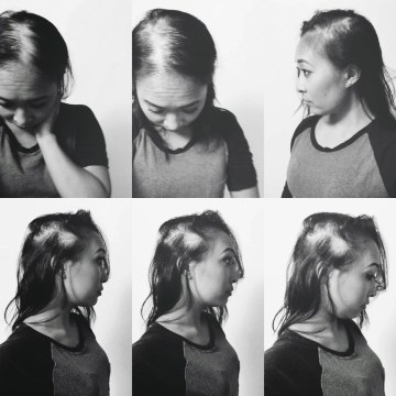An updated series of selfies by Jackie Nguyen, as her hair continued to fall out after her alopecia diagnoses.