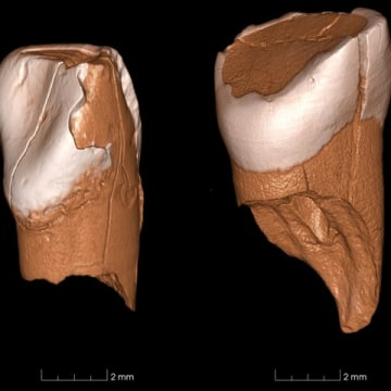 Image: Ancient teeth