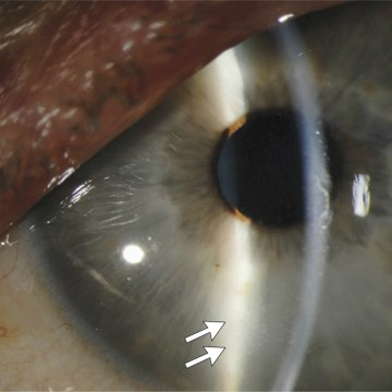 Image: Slit-Lamp Photograph of the Left Eye 14 Weeks after the Onset of Ebola Virus Disease
