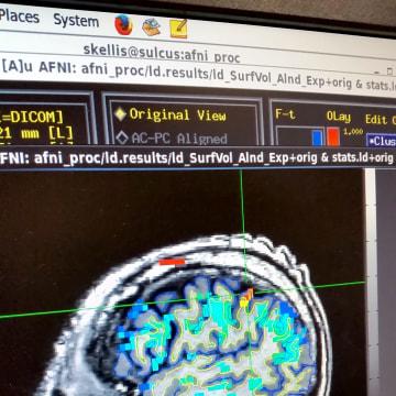 Image: brain fMRI scan