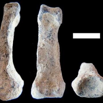 Image: Finger bone