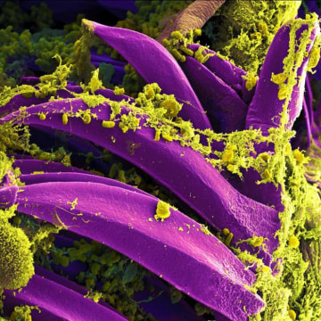 Image: Plague causing Yersinia pestis bacteria