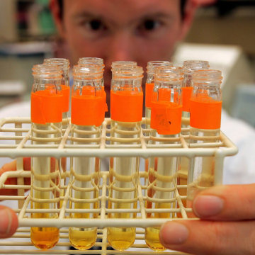 Image: A file photo shows urine samples prepared for testing