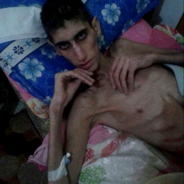 Image: An emaciated man is seen in this undated picture taken from social media
