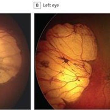 Image: Zika Eyes Abnormality