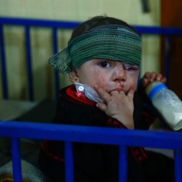 Image: Syrian boy injured by airstrikes in Douma on Feb. 26, 2016