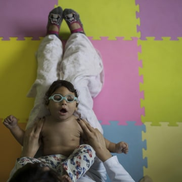 Image: Lucas Matheus, who was born with microcephaly