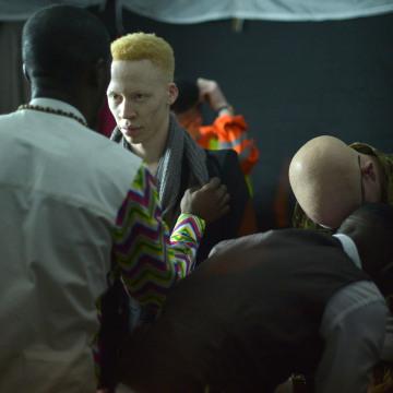 Image: TOPSHOT-KENYA-DISABLED-PEOPLE-HEALTH-ALBINO