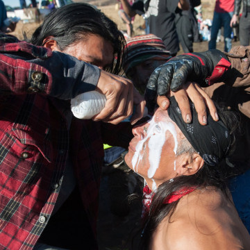 Image: A person pours a pepper spray antidote into a protester's eyes during a protest against the building of a pipeline on the Standing Rock Indian Reservation near Cannonball, North Dakota