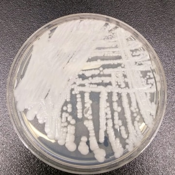 Image: A drug-resistant fungus called Candida auris